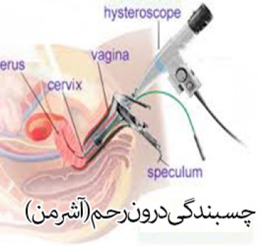 gas embolism in co2 hysteroscopy